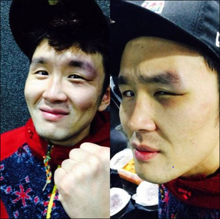 "The ""bruised"" Yoon Hyung-bin posted his photos online.  (Courtesy of Dailian)"