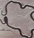 Treponema pallidum spirochete (CDC)
